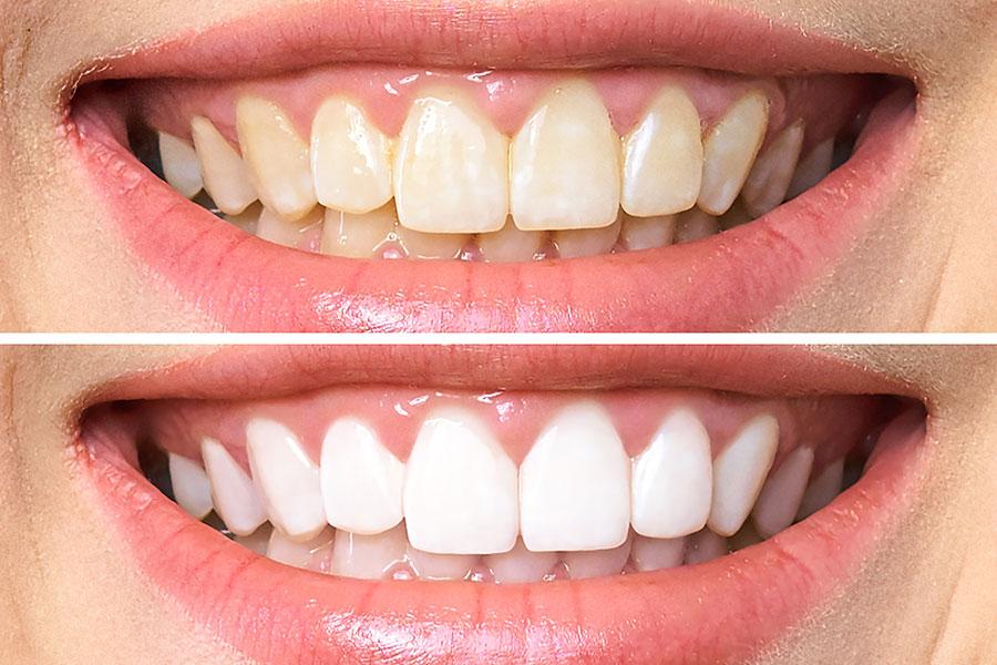 en qué consiste el blanqueamiento dental