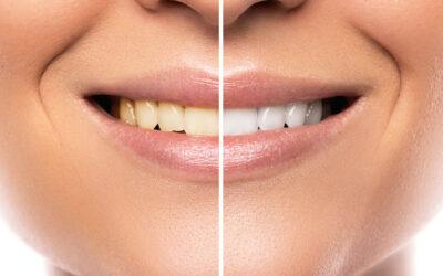 ¿Qué es y en qué consiste el blanqueamiento dental?